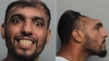 Man with half a head arrested for attempted murder in Florida